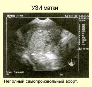 Признаки узи при беременности