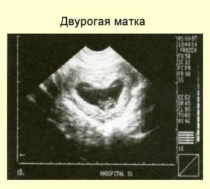 фото матки двурогой