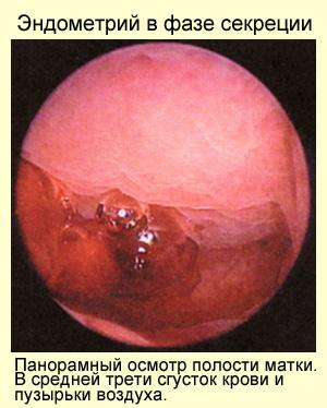 Эндометрий в фазе секреции