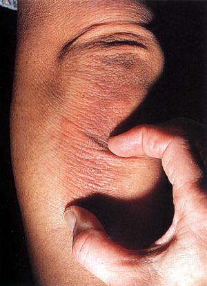 Болит кожа вокруг головки