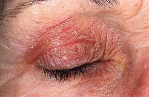 Дерматиты контактный дерматит аллергический дерматит себорейный дерматит экзема