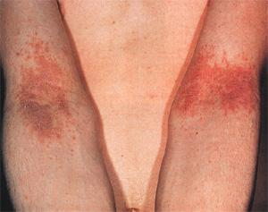 Солярий от атопического дерматита