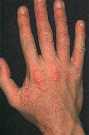 Диагностика и лечение атопического дерматита.