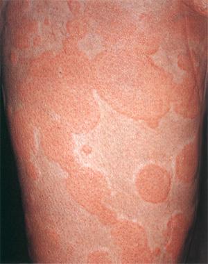 как выглядит аллергия на холод на теле
