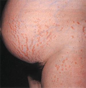 Сыпь на животе при беременности и зуд