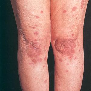 Сыпь на коже, температура, боли в суставах и другие признаки ...