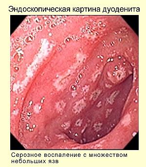 Эндоскопическое исследование в диагностике хронического дуоденита