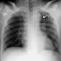Экг при расслаивающей аневризме аорты