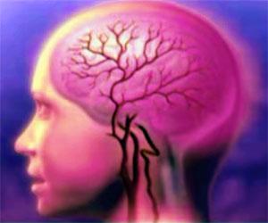 Головная боль при менингите, фото