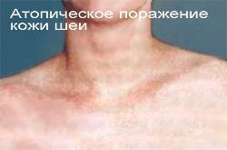 Лечение атопического дерматита у взрослого