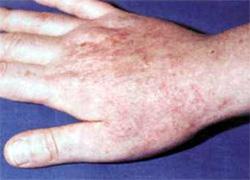 как выглядит аллергия на зеленку фото