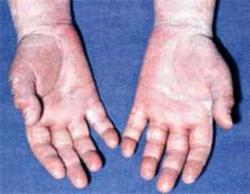 как выглядит аллергия на вещи фото