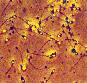 влияние ацикловира на сперматозоиды