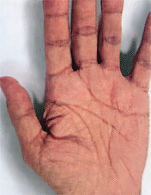 чем лечить кожный зуд при аллергии