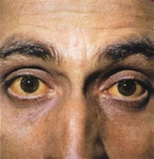 Фото глаз при гепатите