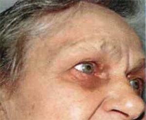 паразиты в носоглотке человека