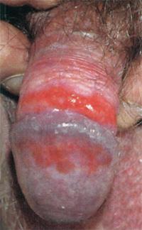 Как лечить уретрит у мужчин фото симптомов лекарства для