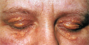 Что такое гиперлипопротеинемия и нарушение липидного обмена, фото