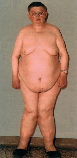 ожирение лечение ожирения
