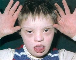 Даун синдром детей 98