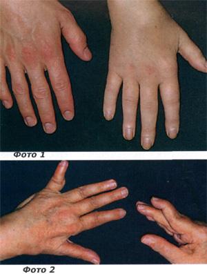 полиартрита мелких суставов кистей