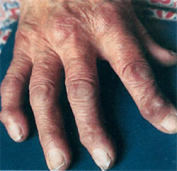 Болезнь суставов и как лечить и. какие мази