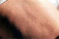 Сифилитическая Сыпь Фото