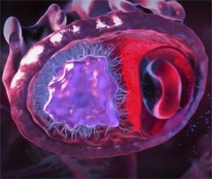 Высокий уровень сахара в крови кома