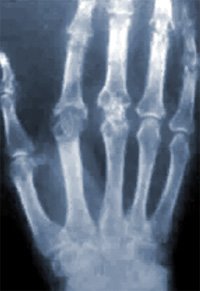 Рентген височно-нижнечелюстного сустава: что это, зачем делают, противопоказания
