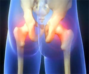 Сцинтиграфия тазобедренного сустава реабилитация после замены коленного сустава