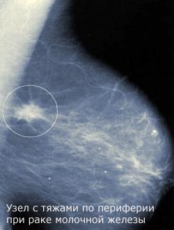Какие исследования проводятся при узле в молочной железе